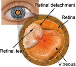 When my retina detached, I barely knew what a retina was.